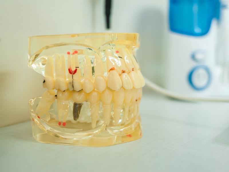протезирование зубов 1