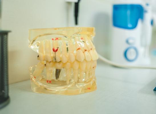 протезирование зубов услуги