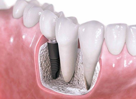 имплантация-зубов-в-севастополе
